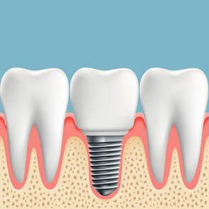 Dental Implants in El Paso, TX
