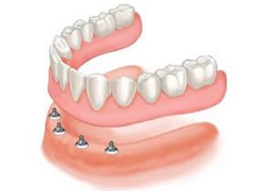 Dentures El Paso