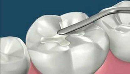 Tooth Fillings in El Paso, TX