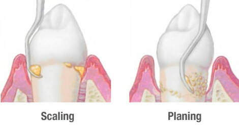 Teeth Cleaning in El Paso, TX