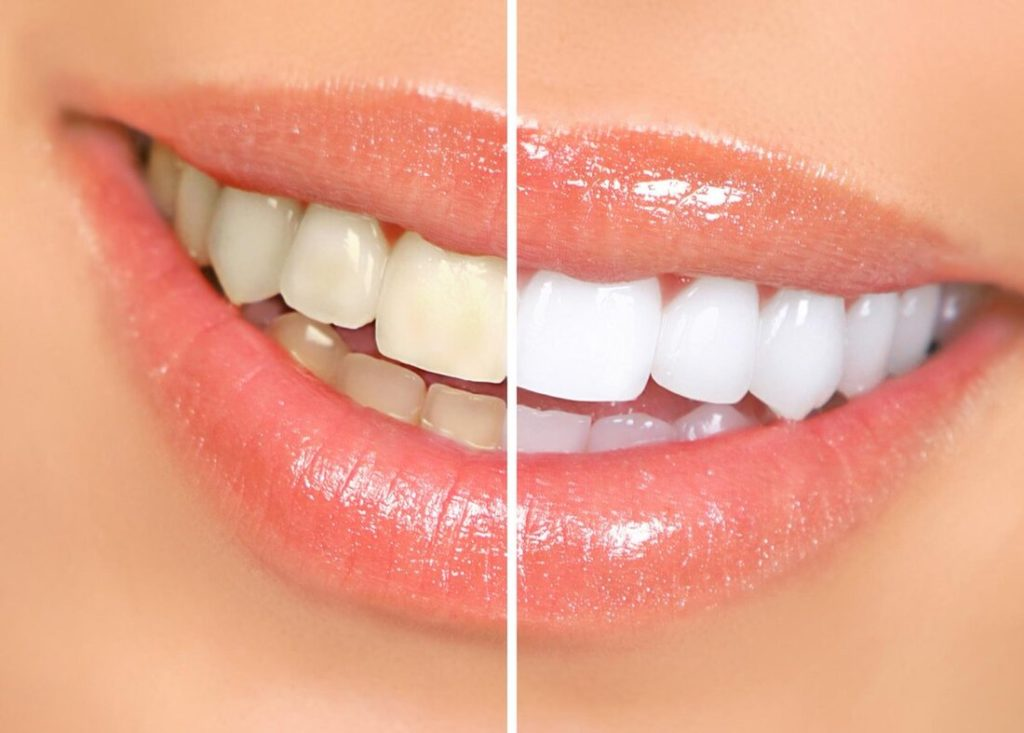 Teeth Whitening in El Paso, TX