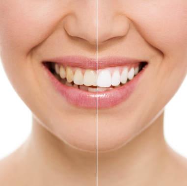 Teeth Whitening El Paso