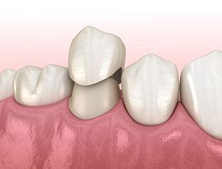 Dental Crowns Near Me! El Paso, TX - Hillside Dental